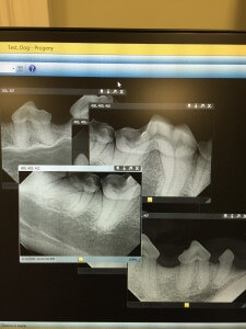 Dental_AHHH_1B